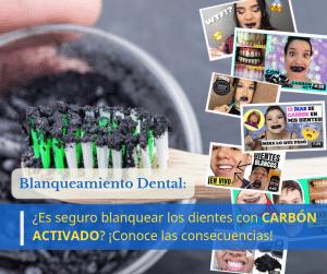 blanquear dientes carbon activado