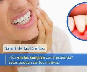 gingivitis periodontitis encias sangran